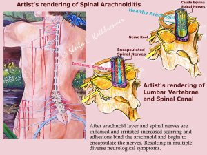 Artist's Rendering of Spinal Arachnoiditis